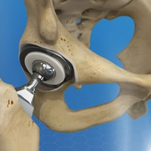anim img Hip Replacement