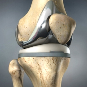 conditions Knee Replacement
