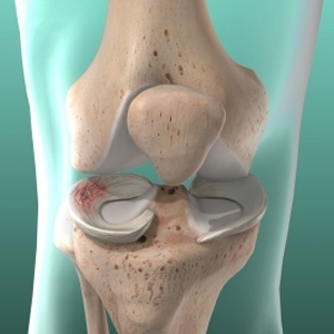 conditions Meniscus Tear