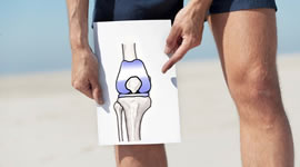knee replacement drawing